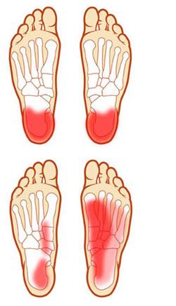 lábfájás a síelés után